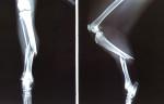 骨折直後のレントゲン